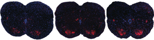 Novel SMA Research Seeks to Correct SMN Protein Production