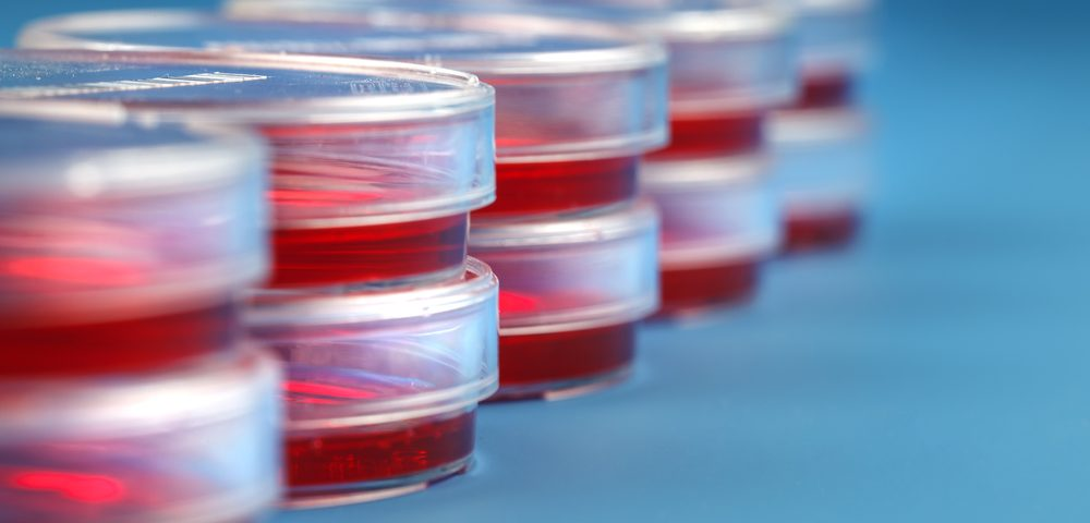 Lab-grown Urine Cells from SMA Patients Could Help Test Therapies, Study Reports